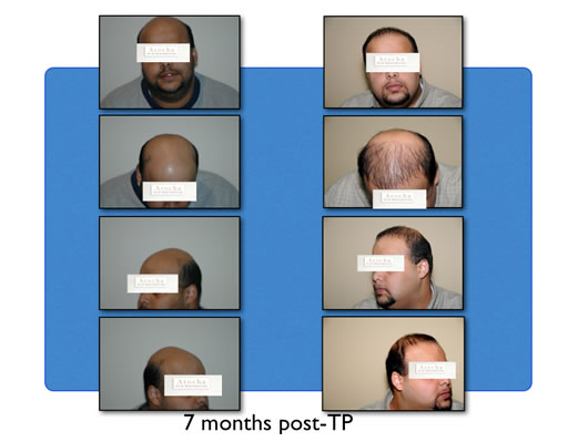 hair transplant after 7 months