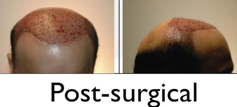 hair transplant postop