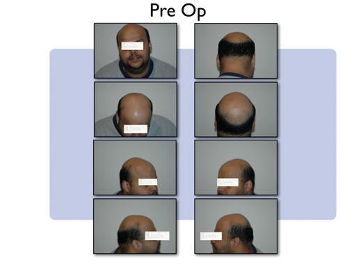 Hair transplant preop