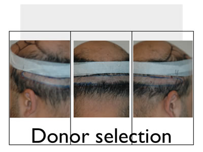 hair transplant strip