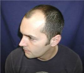 Dr. Charles will not only restore the hair on top of his head but also his hair on the front sides and temple areas.