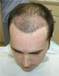 This patient will achieve good cosmetic density after only one session of 2,100 grafts.