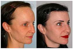 Lowering female hair line
