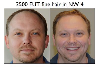 hairtransplant11