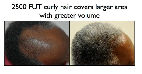 hairtransplant2