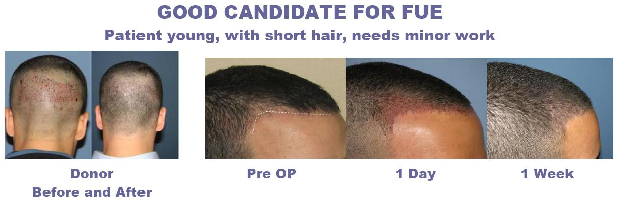 fue_good_candidate_hair_transplant1