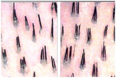 Why do i have two hairs in one follicle