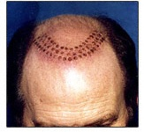 Выпадение волос лечение препаратами нсп