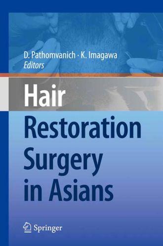 Hair Restoration Surgery in Asians by Dr. Pathomvanich