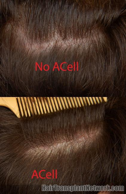 Dr  Jerry Cooley's Presentation on ACell MatriStem in Hair