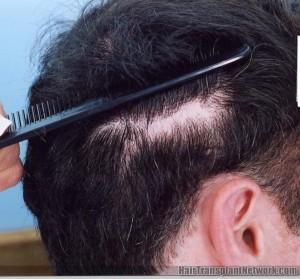 Hair Transplant Donor Scar
