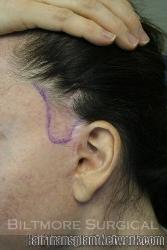 Reconstructing Female Quot Sideburns Quot With Hair