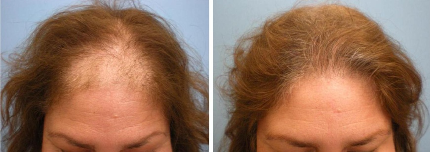 Minoxidil  best hair growth products for hair loss cure