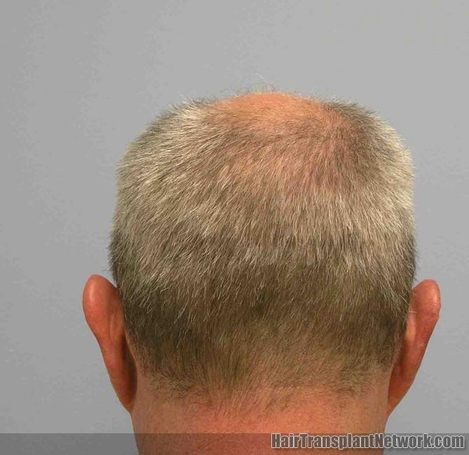 Dr William Lindsey Discusses Hair Transplantation Scarring And The