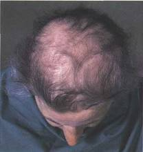 Hair Transplant Surgery for Diffuse Hair Loss? | Hair Loss Q & A
