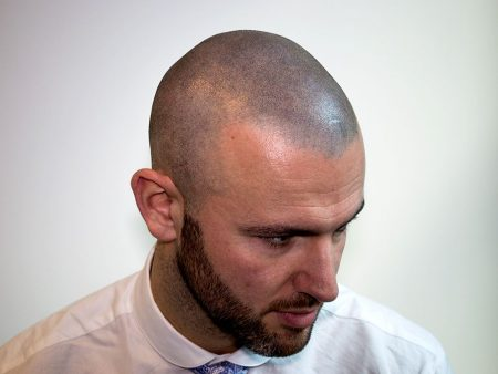 Temporary Scalp Micropigmentation (SMP): The Advantages, Disadvantages, and Top Clinics Currently Offering the Treatment