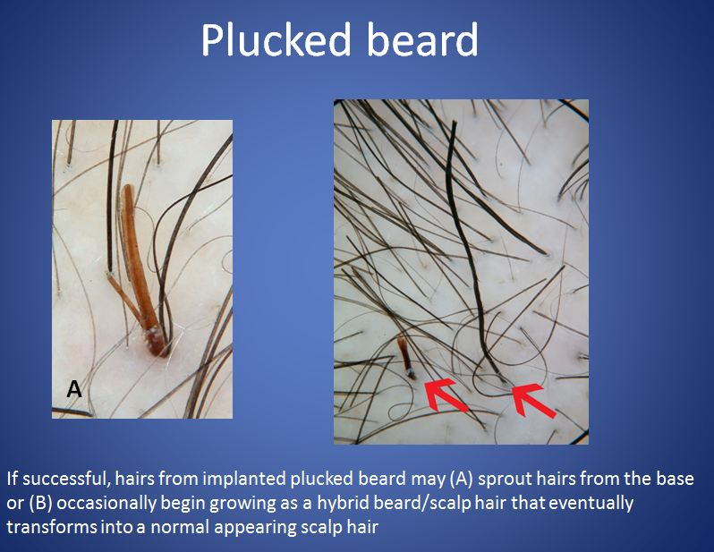 tweezing beard hair