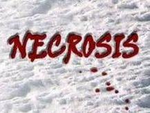 necrosis