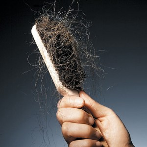 hair__loss_-300x300