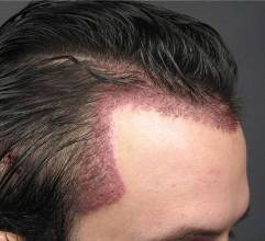 Restoring Quot Temple Triangles Quot With Hair Transplant Surgery