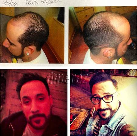 aj-mclean-shows-off-hair-transplant(1)__oPt