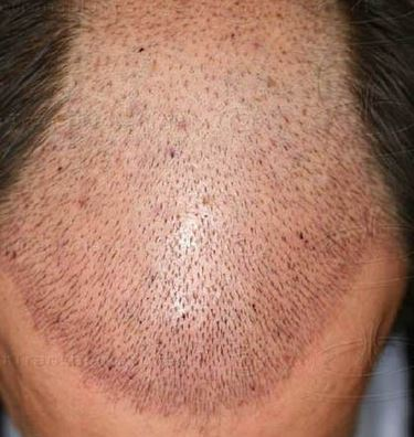 Hair loss after hair transplant where did my grafts go regrow im always surprised when recent hair restoration patients request information about the hair growth timeline after surgery your hair restoration physician urmus Gallery