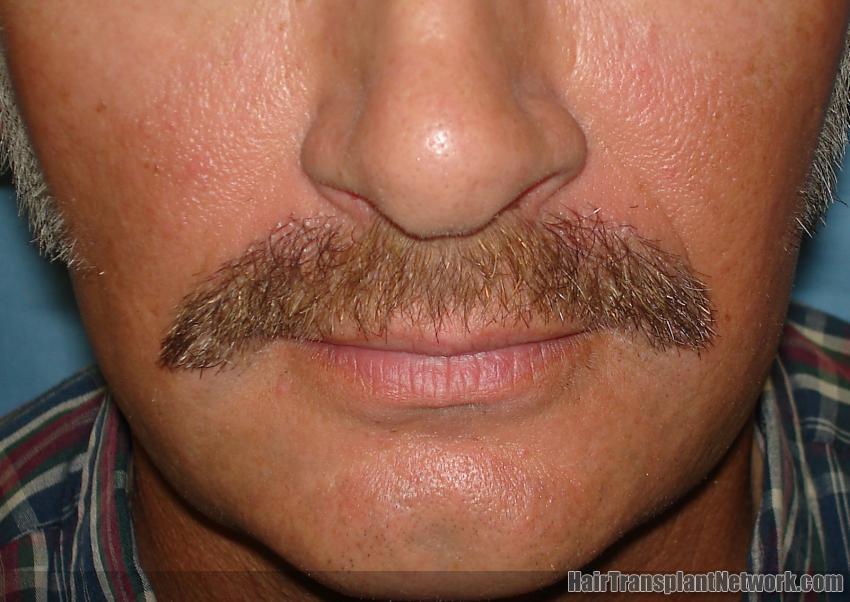 Moustache-after 7 months