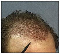 hair_transplant_step_13