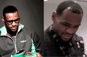 Lebron FUE before and after