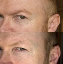 Erebos Eyebrow Transplant