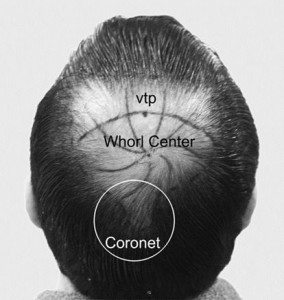 Vertex transition point, Whorl center and coronet