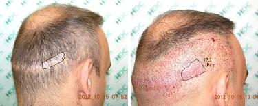 hair transplant scar revision
