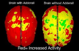 adderall brain