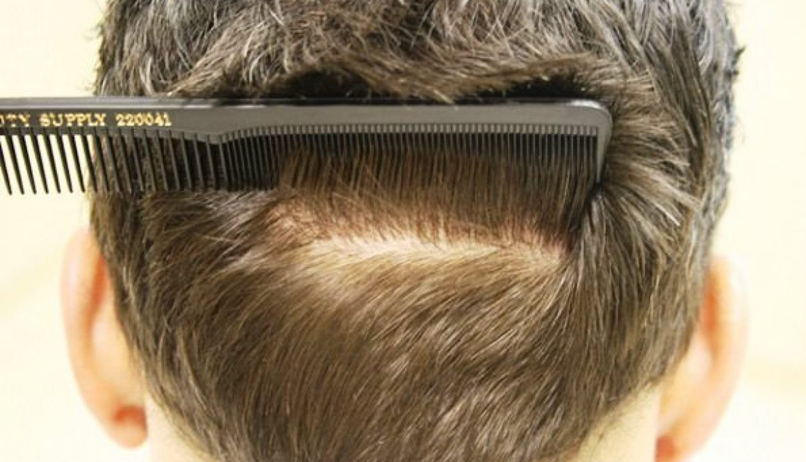 back-donor-after-hair-transplant-2552-grafts-Dr-Alexander