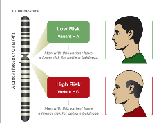 hair loss genetics