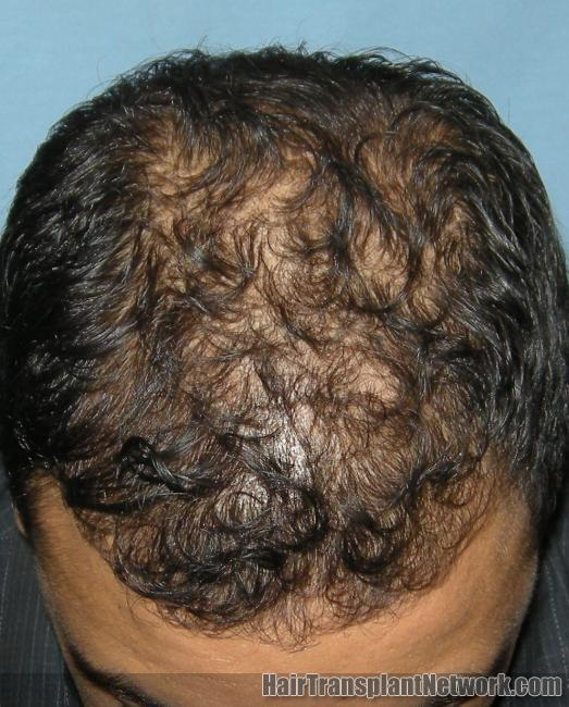 Is propecia effective for hair loss