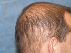 Hair Transplant Without Donor
