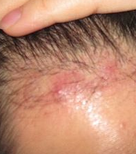 Painful Bumps On My Scalp 3 Months After Hair Transplant