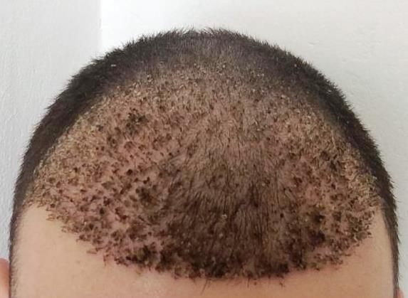 Falling Hairs With Dead Skin After Hair Transplant Normal