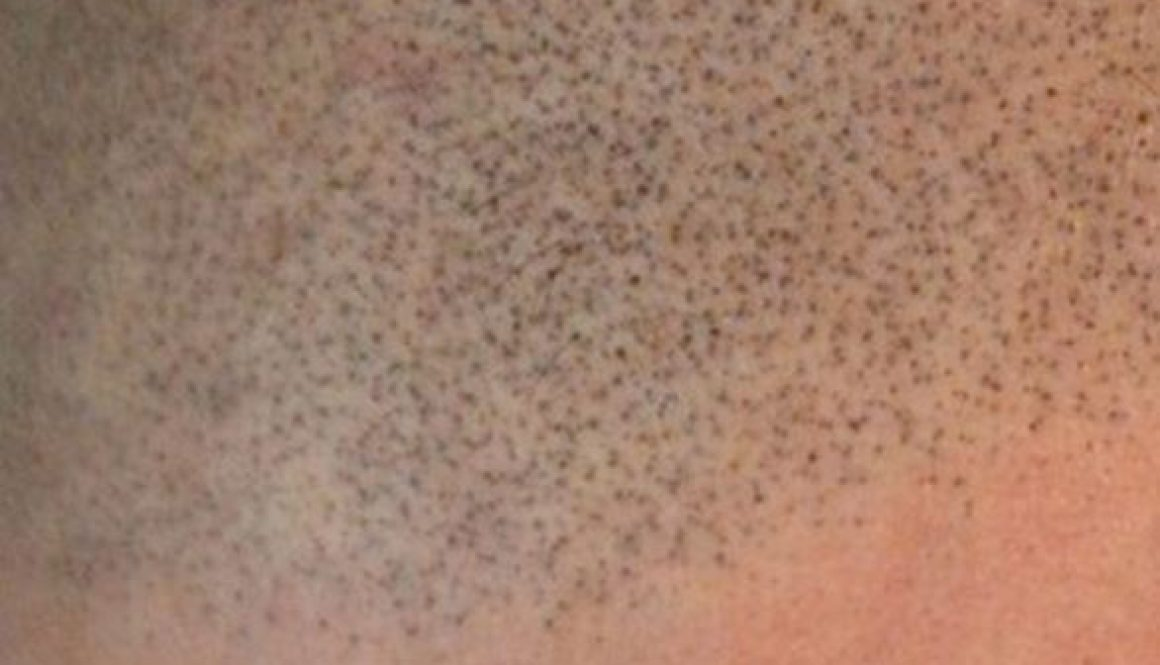 Is the Hair Loss Treatment Scalp Micropigmentation (SMP) Safe for Patients with Scalp Psoriasis?
