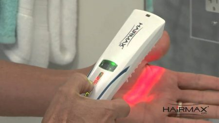 What Patients are Saying about the HairMax Lasercomb and Laser Therapy (LLLT)
