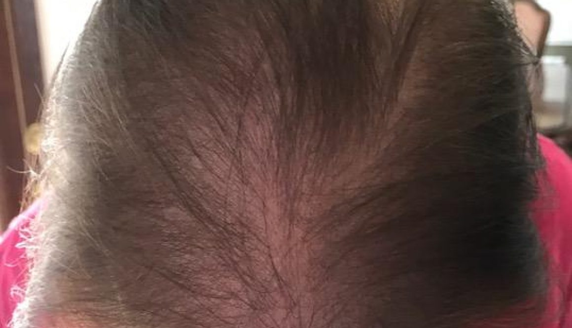 Is Hair Transplant Surgery Recommended for Diffuse Female Hair Loss?