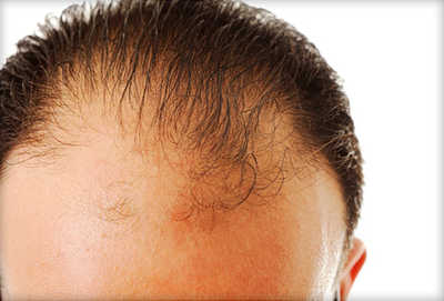 Suffering from Hair Loss for 5/6 Years, Which Drugs work?