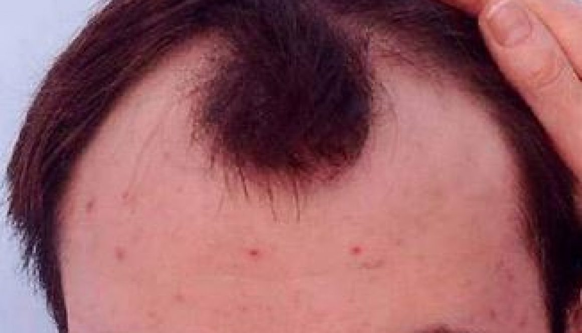 Does a Solid Frontal Tuft Mean Fewer Grafts Required for Hair Transplant Surgery?