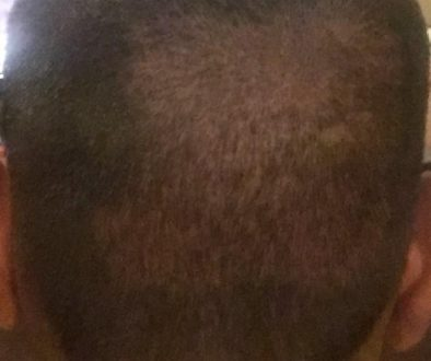 Did My FUE Hair Transplant Surgeon Over Harvest My Donor Area?