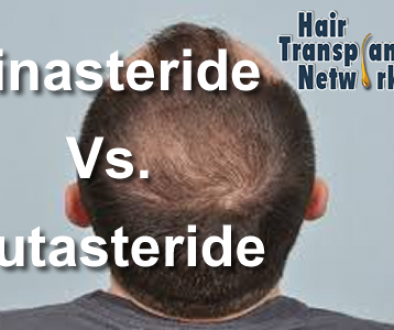 Using Finasteride and Dutasteride Together to Treat Hair Loss?