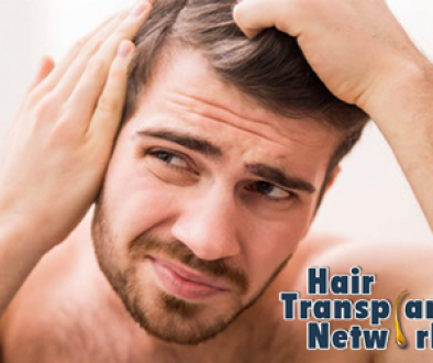How Many Grafts Do I Need For A Good Hair Transplant Result?