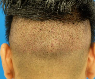 "Undergoing FUT ""Strip"" Surgery After FUE Hair Transplantation"