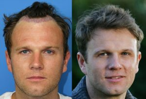 What is the Success Rate of a Hair Transplant and Do I Get a Refund if it Fails?