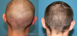 Still Sore and Numb 4 Weeks After Hair Transplant Surgery